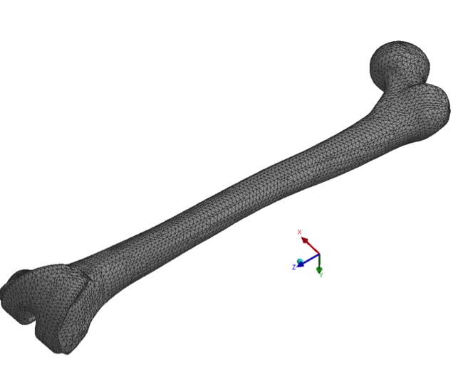 Finite element model of 3rd generation composite bone with attached total knee arthroplasty implant